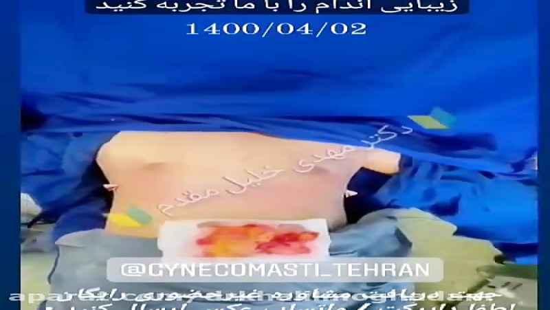 انجام کلیه جراحی های پیکرتراشی و لاغری توسط دکتر مهدی خلیل مقدم